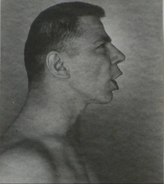 Ted Starkowski George Platt Lynes